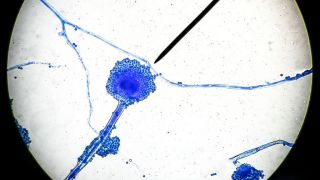 Microscopic image of a filamentous fungus that causes mucormycosis, a relatively rare fungal infection