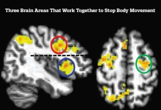 An image from the study shows three areas of the brain involved in arresting decisions.