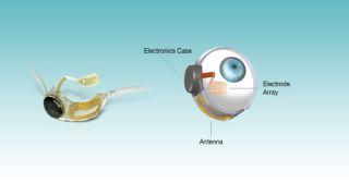 Argus II artificial retina