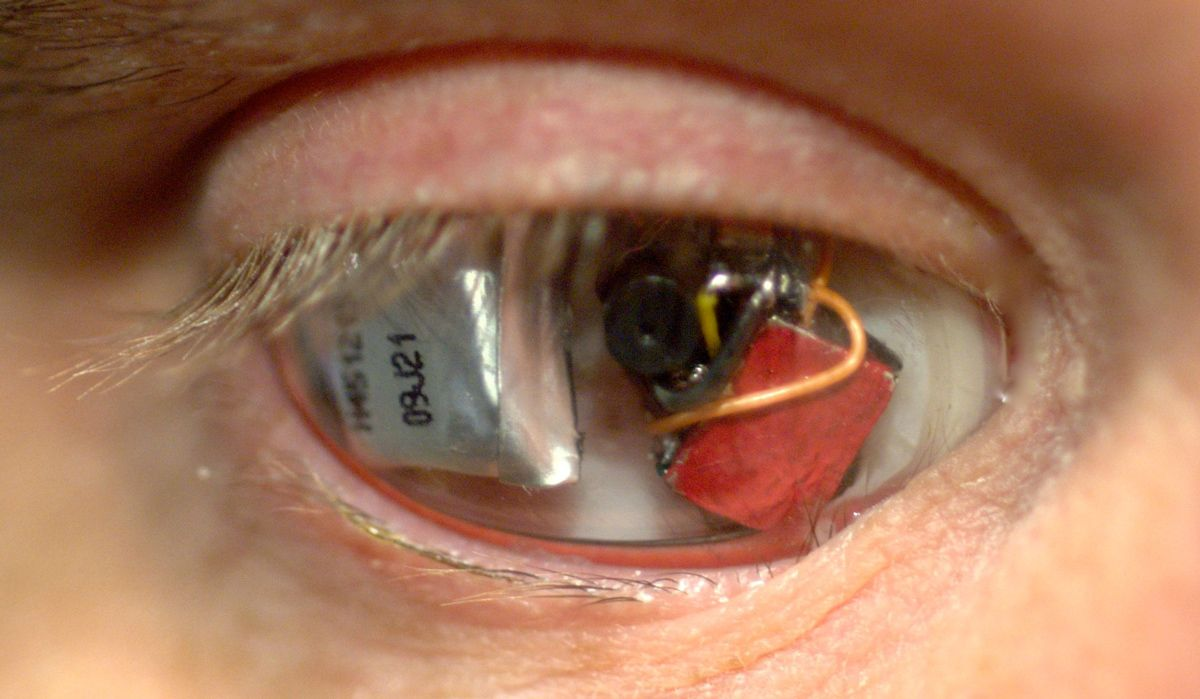 Meet the 'Eyeborg': The Man with a Camera Eye