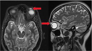 bmj case report, brain scan