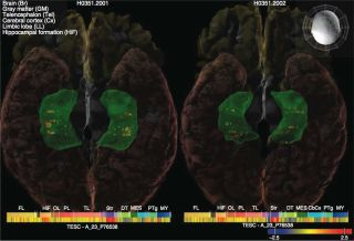 Genes in the brain associated with hippocampus size and intelligence.