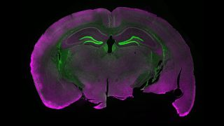 microscopy image of a fluorescently labeled section of a mouse brain.