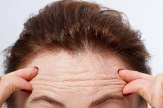 Forehead wrinkles.