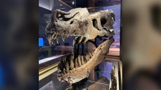 Sue the T. rex suffered from a big toothache due to three tiny, weird-looking teeth.