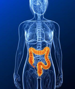 colon-cancer-risk