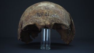 The skull of the hunter-gatherer, who has been dubbed RV 2039.