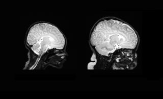 The brain scan on the left is taken from a newborn, and the one on the right is taken 90 days later.