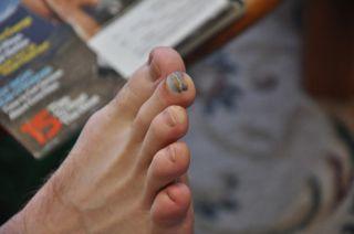 broken toes, health