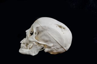 3D-Printed Skull from Egyptian Mummy