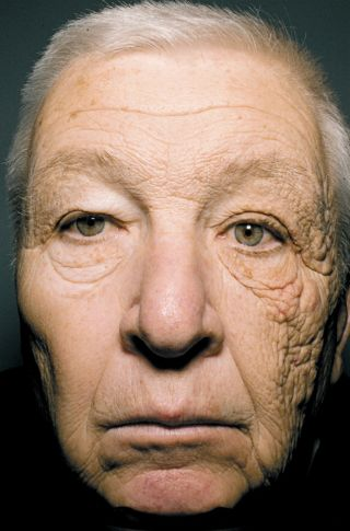 Sun damage on one side of a truck driver's face.