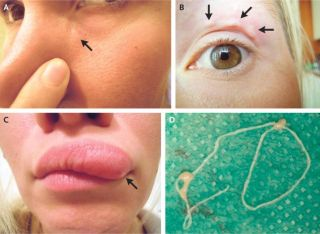 A woman in Russia found a lump on her face that turned out to be a parasitic worm crawling under her skin. The lump first appeared under the woman's eye (Panel A), and then moved above her eye (Panel B), before migrating to her upper lip (Panel C). Doctor