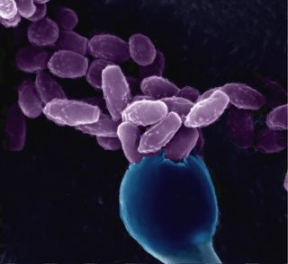 Cryptococcus neoformans yeast