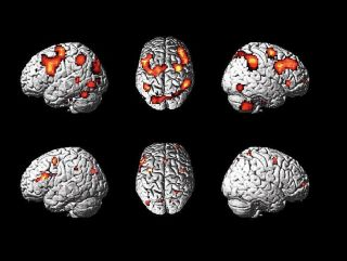 Brain activity could expose potential terrorists