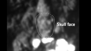 This image shows the outline of Skull-Top Ridge, the second landing site on Comet 67P/Churyumov-Gerasimenko for the Rosetta spacecraft's Philae lander, which set down on Nov. 12, 2014.