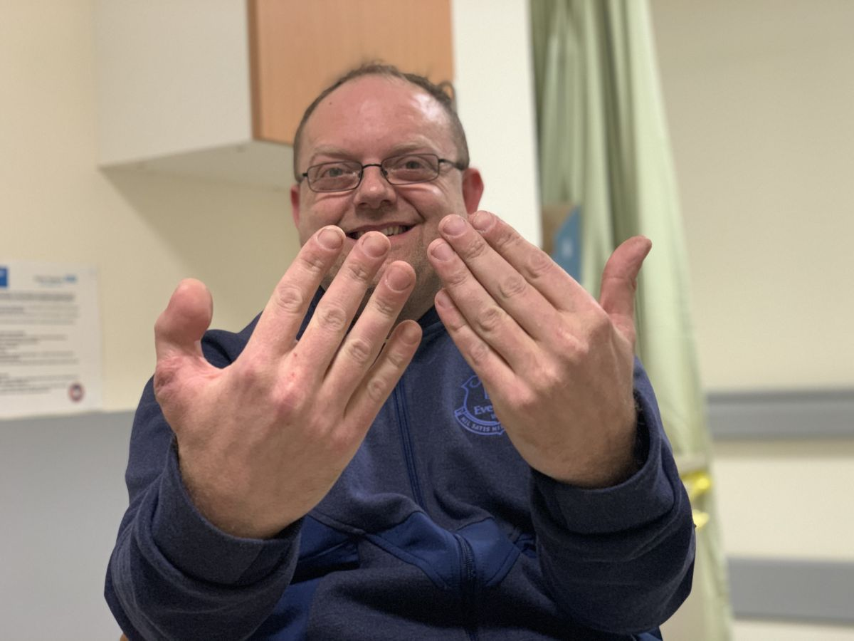 In rare surgery, hospital swaps man's lost thumb for a big toe