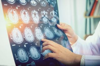 Doctor holding brain scan images.