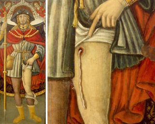 Medieval painting of St. Roch showing a possible Guinea worm coming out of his leg.