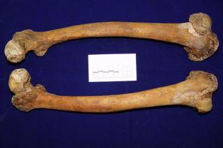 Femur bones