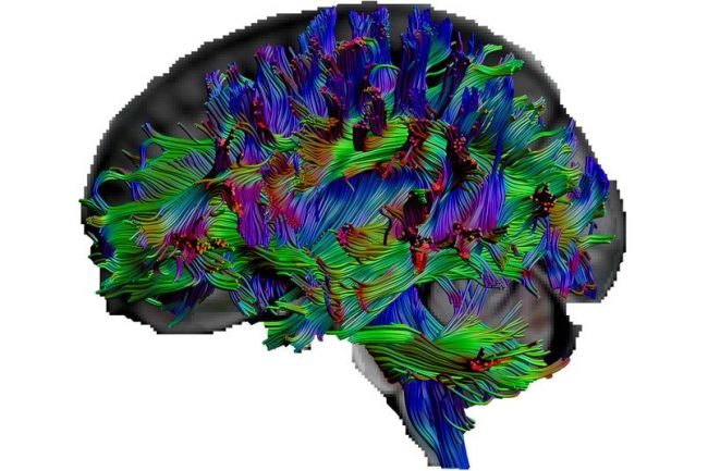 """With a special kind of MRI called """"diffusion tensor imaging,"""" the researchers were able to visualize pathways in the brain."""