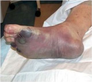 Foot infected with septicemic plague