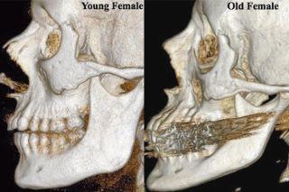 facial-bones-110105-02