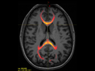"An MRI image from a patient with mild traumatic brain that highlights the nerve fibers of the corpus callosum, an area that helps the two halves of the brain ""talk"" to each other. These fibers may be damaged after a concussion."