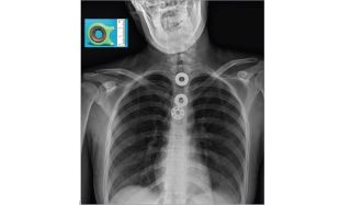 swallowed fidget spinner
