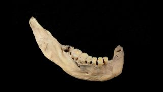The jawbone of Tianyuan man