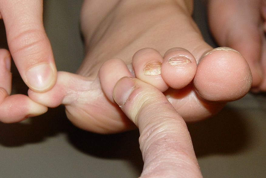 Nail Fungus Symptoms And Treatment Live Science
