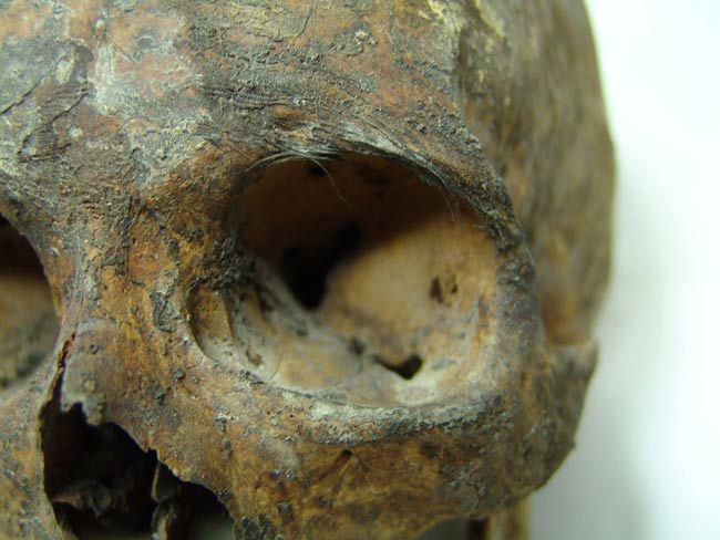 Greek Mummy Found in Lead Coffin