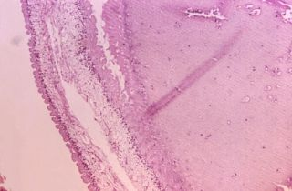 This micrograph shows a sample of brain tissue from a a case of cysticercosis, which is an infection due to the ingestion of eggs of a the parasite Taenia solium.