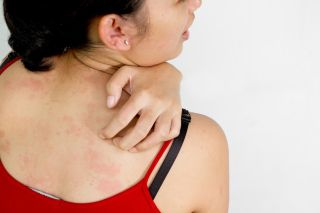 A woman scratches at a rash on her back.