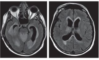 A man's mysterious symptoms were due to a brain infection with Powassan virus, a rare virus carried by ticks. Above, images from an MRI of the man's brain. On the left, fluid-filled cavities in the brain called ventricles appear wider than usual. On the r