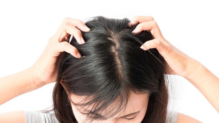 head, scalp