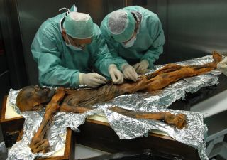 Otzi stomach examination