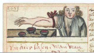 Ancient bloodletting illustration