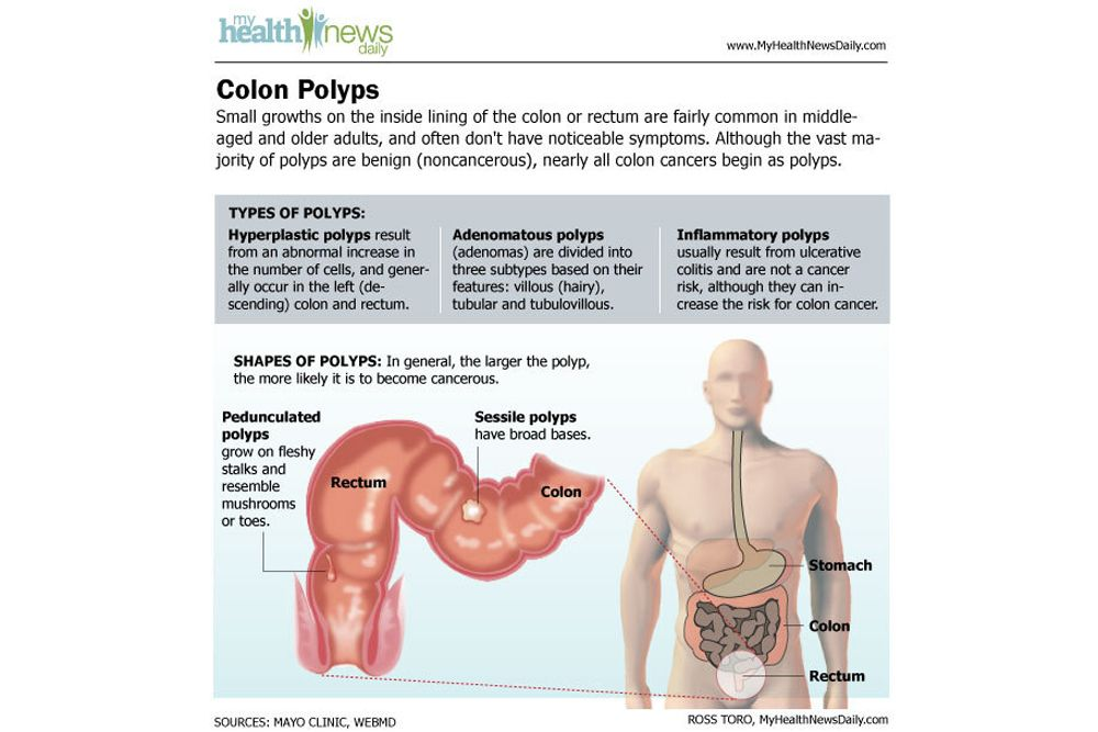 Colon Cancer Causes Symptoms And Treatments Live Science