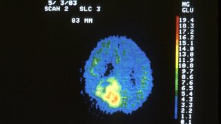 image of brain scan