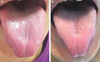 "A man's tongue was missing ""papillae,"" or the small bumps on the tongue that often contain taste buds (A). After treatment, the man's tongue returned to normal (B)."