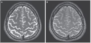 An MRI of an astronaut's brain before (panel A) and after (panel B) a long-duration spacefight.