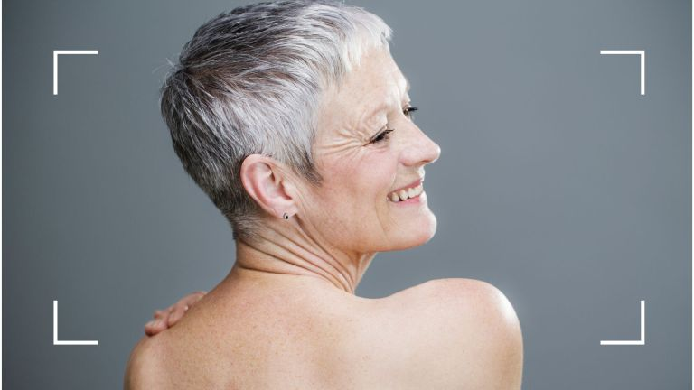 how to get rid of back acne main image of woman showing bare upper back