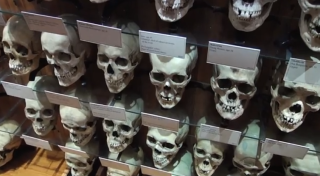 Hyrtl skull collection