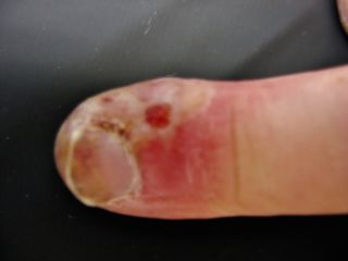 Herpes finger infection