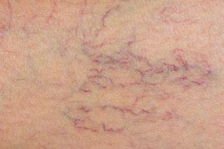 vericose veins, health