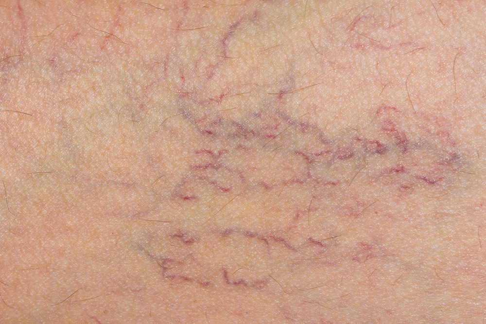 Varicose Veins & Spider Veins: Causes & Treatment | Live Science