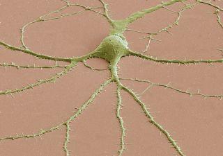 SEM of neuron