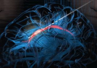 An illustration shows an electrode stimulating a bundle of white matter called the cingulum bundle.