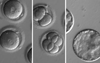 This sequence of images shows the development of human embryos after they were injected with a gene-correcting enzyme and sperm from a donor with a genetic mutation known to cause a type of heart disease.