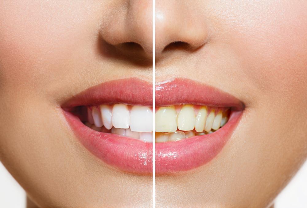 Why Do Teeth Turn Yellow? | Live Science